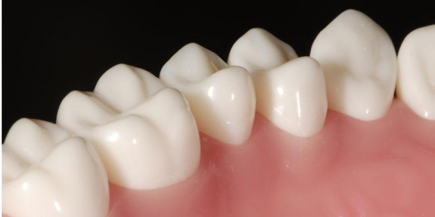 虫歯 セラミック 値段